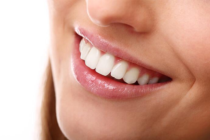diş beyazlatma nişantaşı, nişantaşı diş beyazlatma, diş beyazlatma