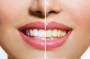 Diş Beyazlatma Tedavisinden Sonra Dişler Tekrar Sararır mı?