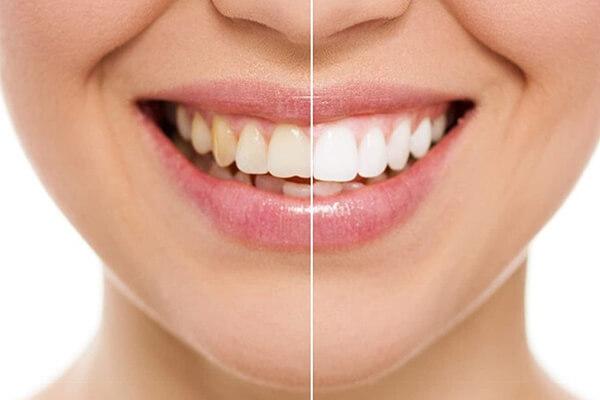 diş beyazlatma tedavisi, diş beyazlatma işlemi, diş beyazlatma hekimi, diş beyazlatma doktoru, diş beyazlatma uzmanlığı