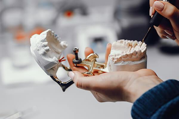 diş protezi avantajları, protez diş avantajları, protez diş avantajları nelerdir
