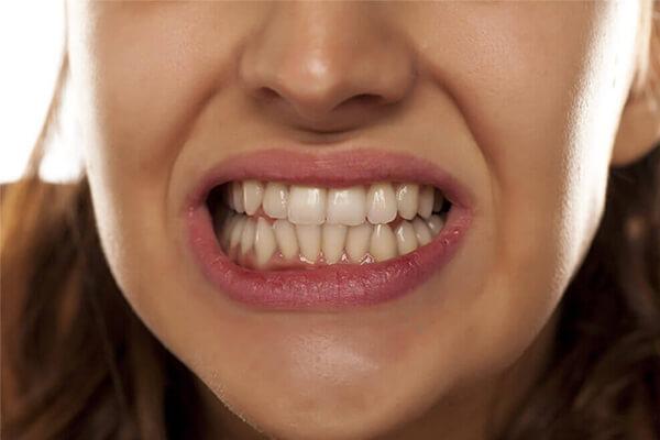 diş sıkma tedavisi avantajları, diş sıkma tedavisi neden, diş sıkma tedavisinde yapılanlar
