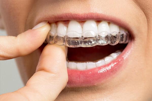 diş sıkma tedavisi durumları, diş sıkma tedavisi işlemleri, diş sıkmanın nedenleri, diş gıcırdatmanin nedenleri