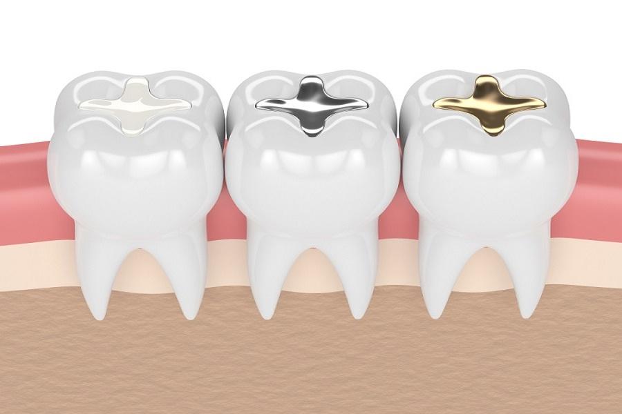 dolgulu diş ağrısı nasıl geçebilir, dolgulu diş ağrısı nasıl geçer