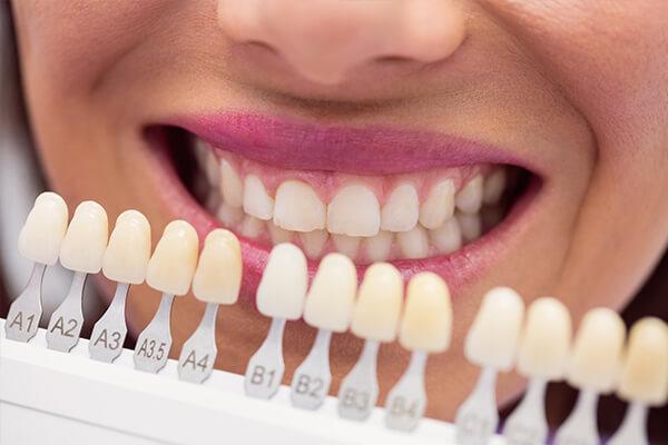 estetik dolgu tedavisi, estetik dolgu işlemleri, estetik dolgu nişantaşı, estetik diş hekimliği