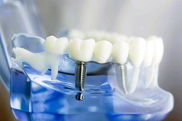 implant tedavisi uygulamaları, implant tedavisi uygulama şekilleri, implant uygulamaları, implant uygulaması