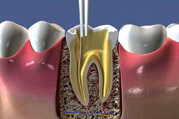 kanal tedavisi avantajları, kanal tedavisi ile diş kaybının önüne geçin, estetik kanal tedavisi