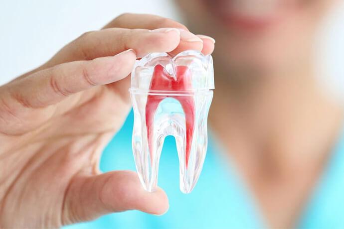 nişantaşı kanal tedavisi, kanal tedavisi nişantaşı, endodontist nişantaşı, nişantaşı endodontist