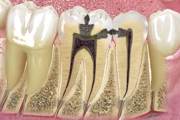 kanal tedavisi uygulaması, kanal tedavisi uygulama alanları, diş eti hastalıklarında kanal tedavisi