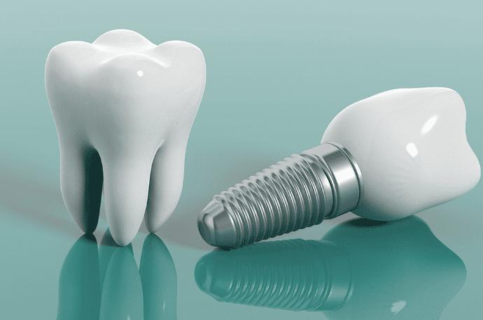 Nişantaşı implant tedavisi, implant tedavisi, istanbul nişantaşı implant tedavisi