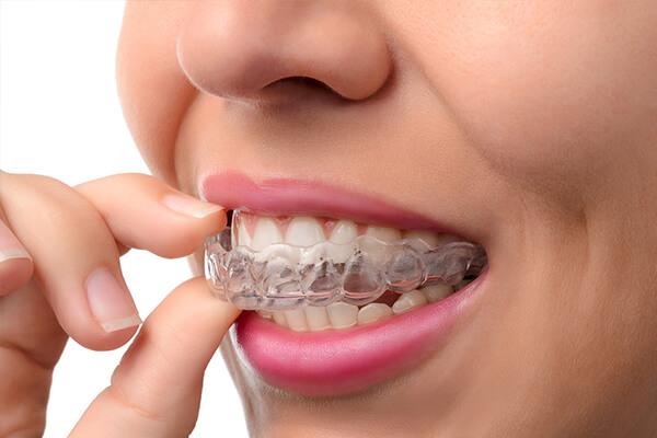 ortodonti tedavisi durumları nelerdir, ortodontik tedavi işlemi, farklı ortodonti tedavileri