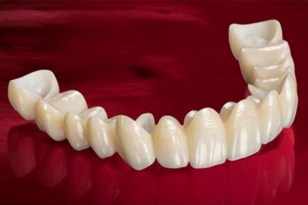 porselen kaplama tedavisi, porselen kuron avantajları, porselen kulron kullanımı