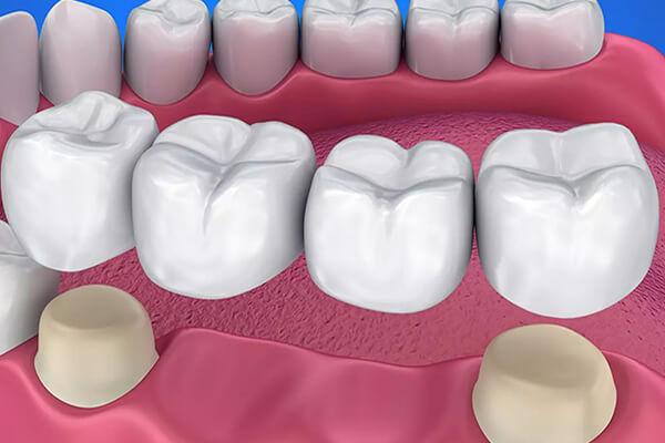 porselen kaplama kullanımı, porselen kaplama tedavisi, porselen kuron nişantaşı, nişantaşı porselen kaplama