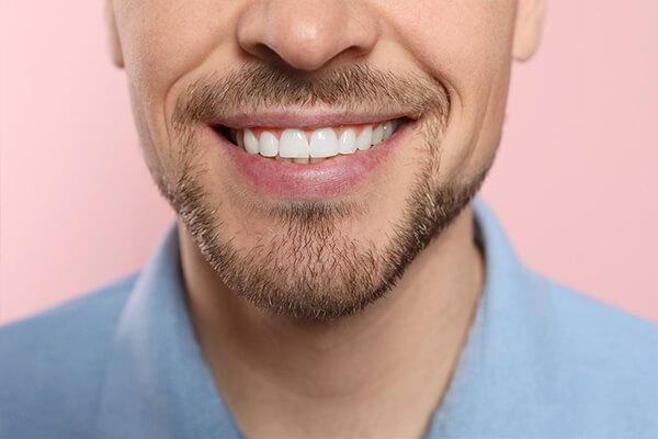 porselen lamina avantajları, porselen diş işlemleri, porselen diş tedavisi, tedavi porselen diş