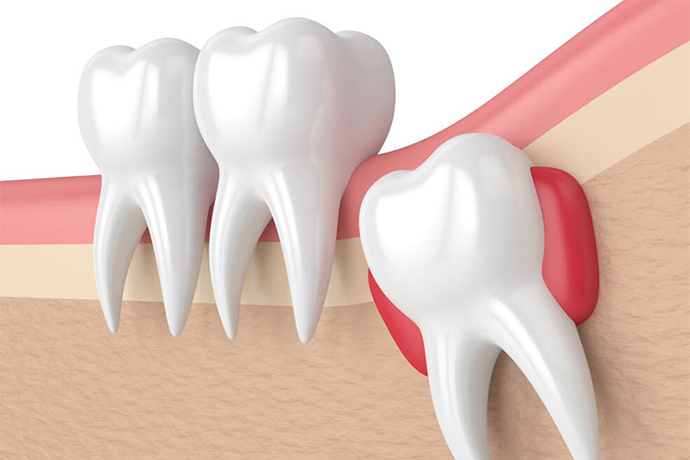 yirmi yaş diş tedavisi, 20 yaş diş tedavisi- nişantaşı 20 yaş diş tedavisi