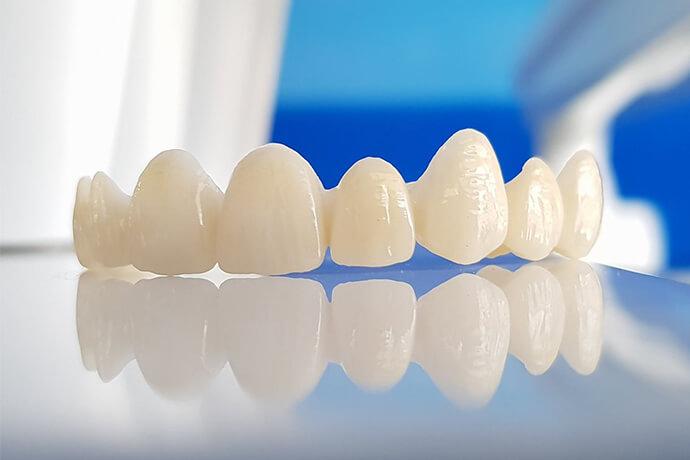 zirkonyum diş kaplama nedir, zirkonyum diş kaplama, diş kaplama
